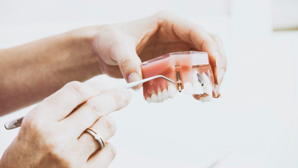 Implantología en Sevilla y postoperatorio
